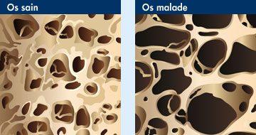 Osteoporose_naturopathie