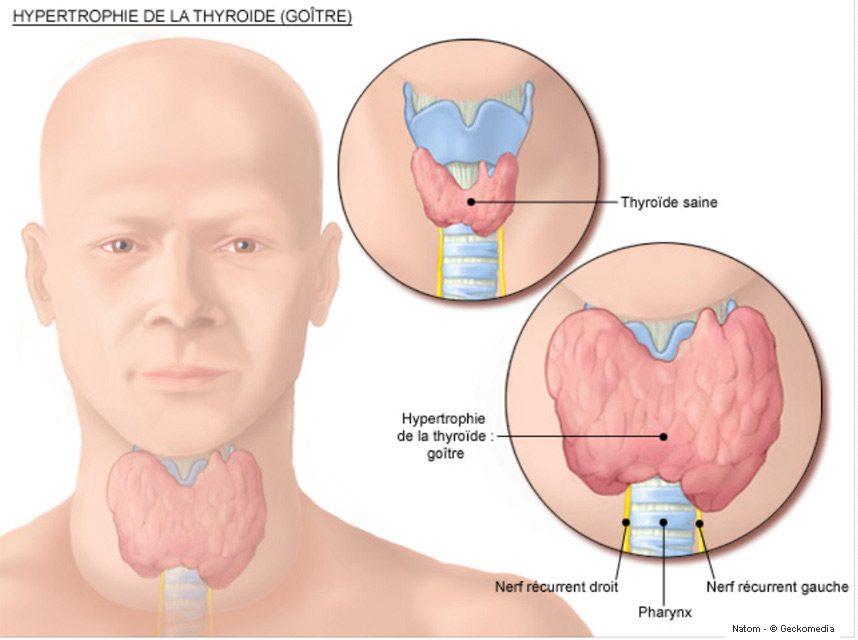 Hypothyroïdie endocrinienne-goitre-loic-ternisien-Naturopathe